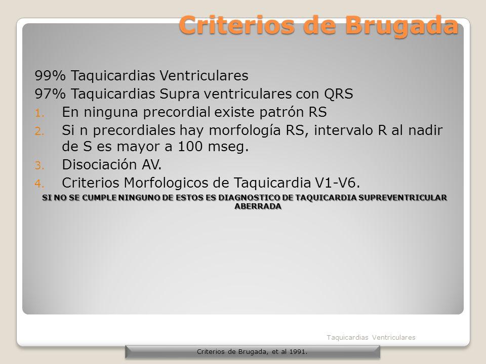 Criterios de Brugada 99% Taquicardias Ventriculares 97% Taquicardias Supra ventriculares con QRS 1. En ninguna precordial existe patrón RS 2. Si n pre
