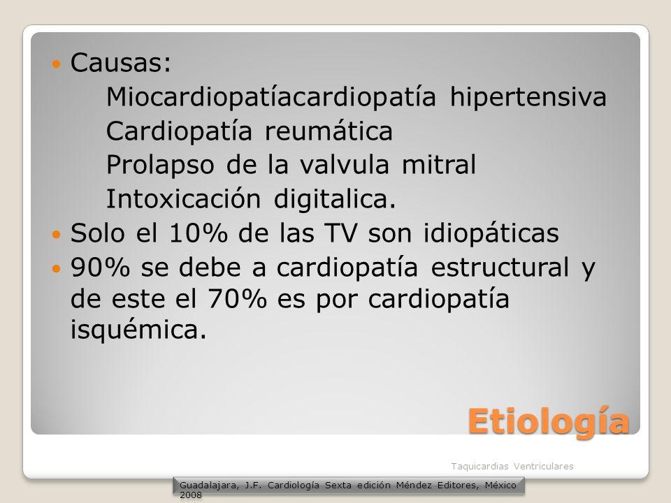 Etiología Causas: Miocardiopatíacardiopatía hipertensiva Cardiopatía reumática Prolapso de la valvula mitral Intoxicación digitalica. Solo el 10% de l