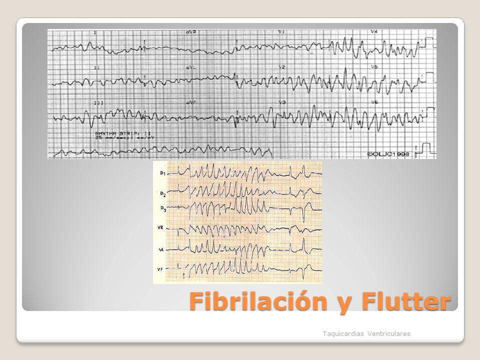Fibrilación y Flutter Taquicardias Ventriculares
