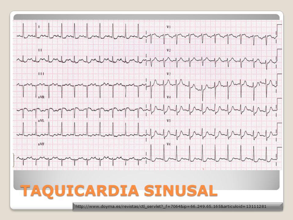 FLUTTER Y FIBRILACION VENTRICULAR IGUAL A PARO CARDIACO Descarga ectópica ventricular rápida FC mayor a 200 en flutter y FA 150-500 L.