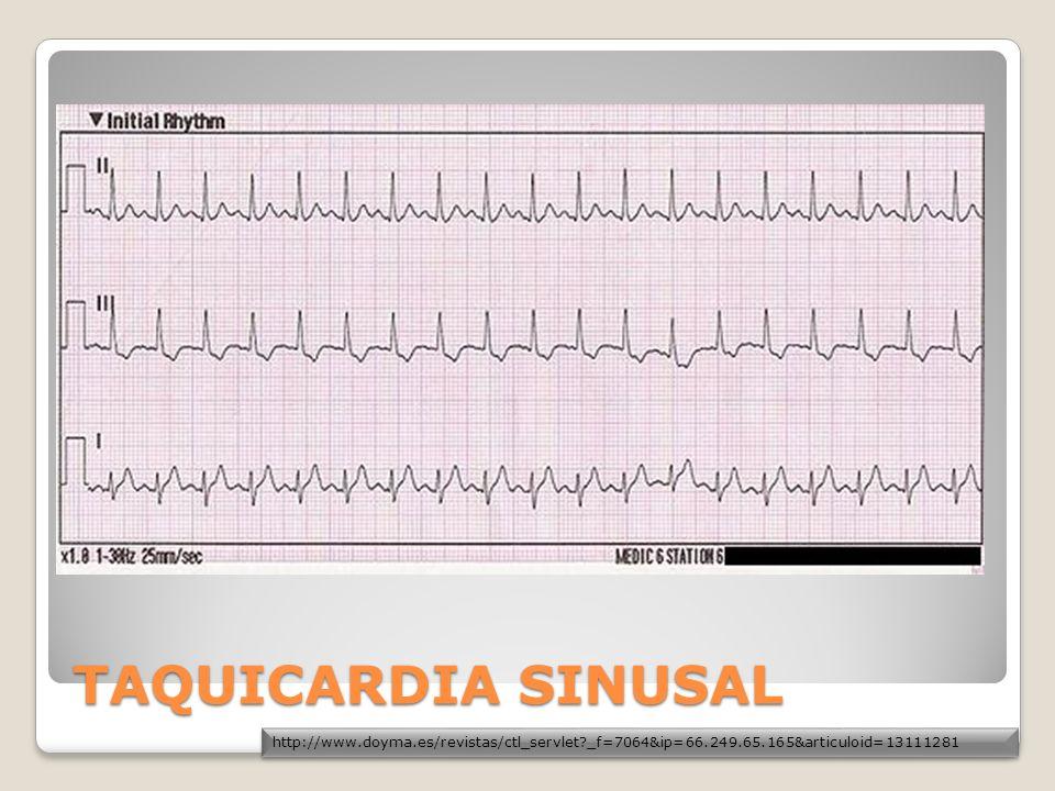 2.Mecanismo de QRS Anchos Los tres mecanismos de ensanchamiento del complejo QRS durante taquicardia o latidos aislados son: Conducción intraventricular aberrante de impulsos SV.