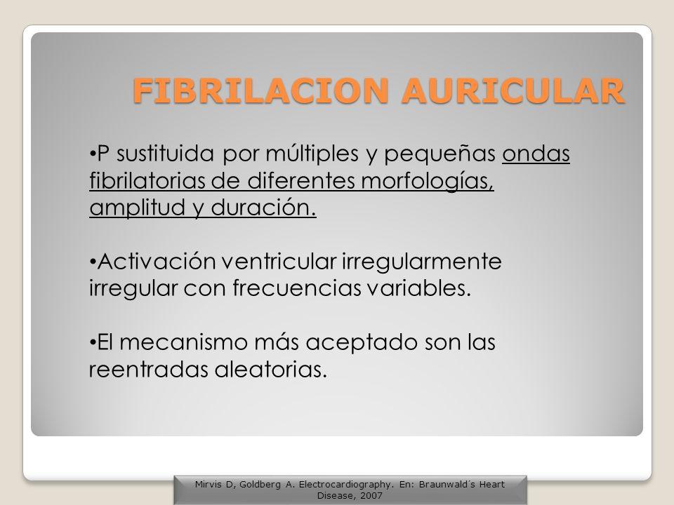 FIBRILACION AURICULAR P sustituida por múltiples y pequeñas ondas fibrilatorias de diferentes morfologías, amplitud y duración. Activación ventricular
