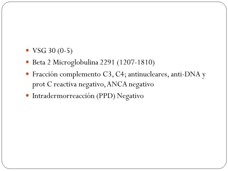 VSG 30 (0-5) Beta 2 Microglobulina 2291 (1207-1810) Fracción complemento C3, C4; antinucleares, anti-DNA y prot C reactiva negativo, ANCA negativo Int