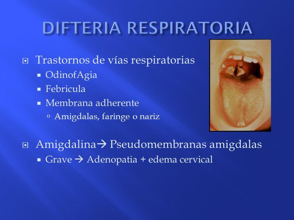 Trastornos de vías respiratorias OdinofAgia Febricula Membrana adherente Amigdalas, faringe o nariz Amigdalina Pseudomembranas amigdalas Grave Adenopa