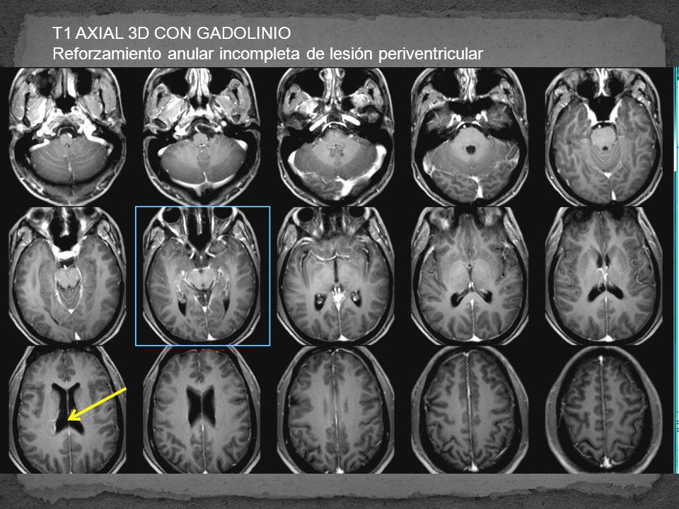 T1 AXIAL 3D CON GADOLINIO Reforzamiento anular incompleta de lesión periventricular