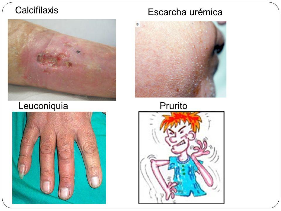 Calcifilaxis Escarcha urémica LeuconiquiaPrurito