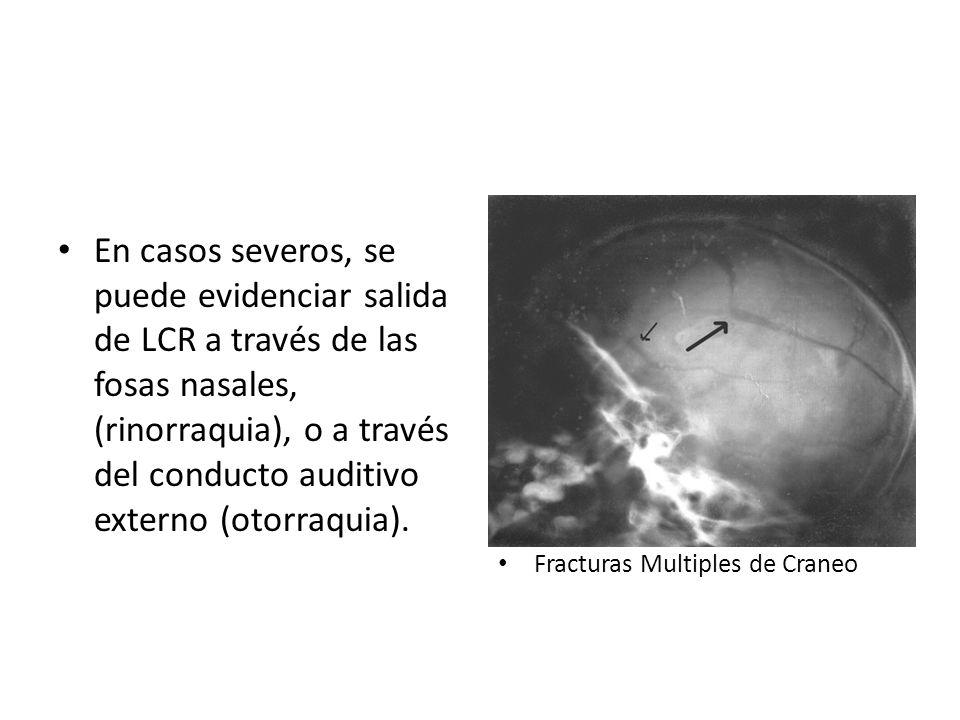 En casos severos, se puede evidenciar salida de LCR a través de las fosas nasales, (rinorraquia), o a través del conducto auditivo externo (otorraquia