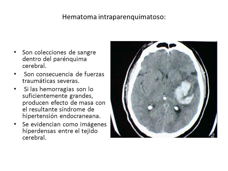 Hematoma intraparenquimatoso: Son colecciones de sangre dentro del parénquima cerebral. Son consecuencia de fuerzas traumáticas severas. Si las hemorr