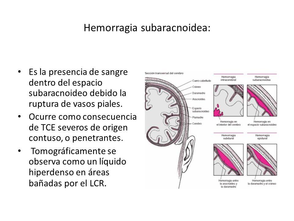 Hemorragia subaracnoidea: Es la presencia de sangre dentro del espacio subaracnoideo debido la ruptura de vasos piales. Ocurre como consecuencia de TC