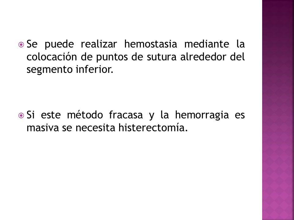 Se puede realizar hemostasia mediante la colocación de puntos de sutura alrededor del segmento inferior. Si este método fracasa y la hemorragia es mas