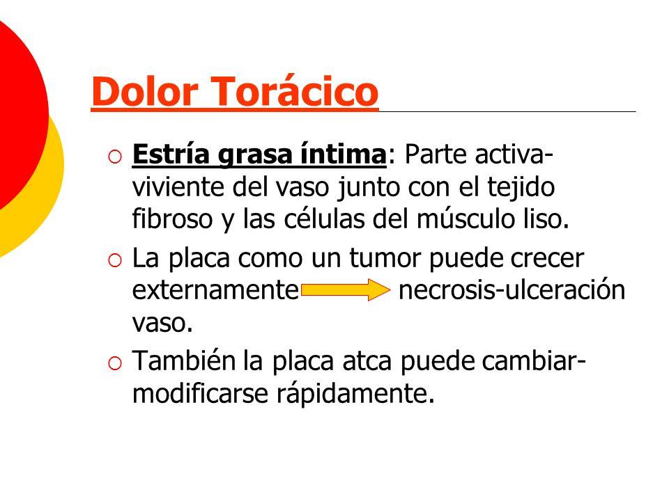 Dolor Torácico Estría grasa íntima: Parte activa- viviente del vaso junto con el tejido fibroso y las células del músculo liso. La placa como un tumor