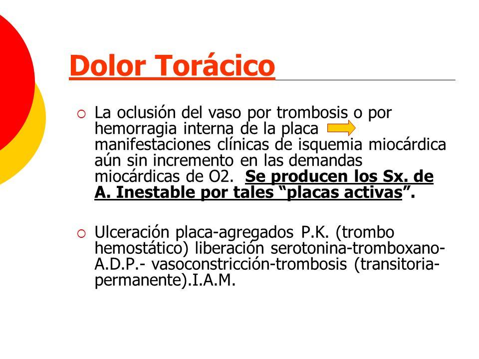 Dolor Torácico La oclusión del vaso por trombosis o por hemorragia interna de la placa manifestaciones clínicas de isquemia miocárdica aún sin increme