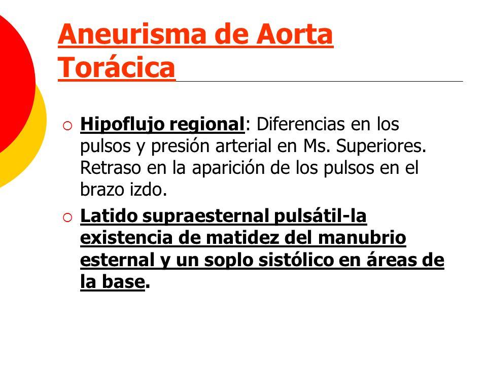 Aneurisma de Aorta Torácica Hipoflujo regional: Diferencias en los pulsos y presión arterial en Ms. Superiores. Retraso en la aparición de los pulsos