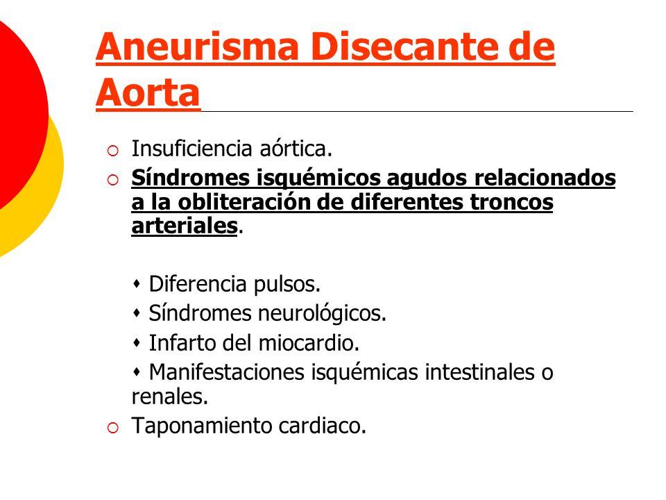 Aneurisma Disecante de Aorta Insuficiencia aórtica. Síndromes isquémicos agudos relacionados a la obliteración de diferentes troncos arteriales. Difer