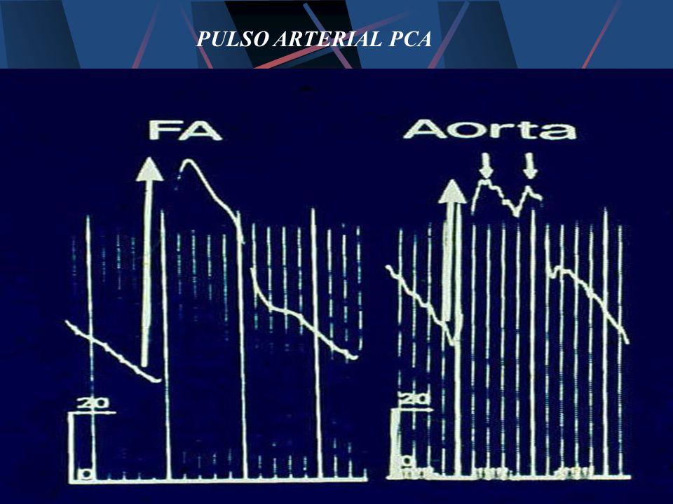 PULSO ARTERIAL PCA