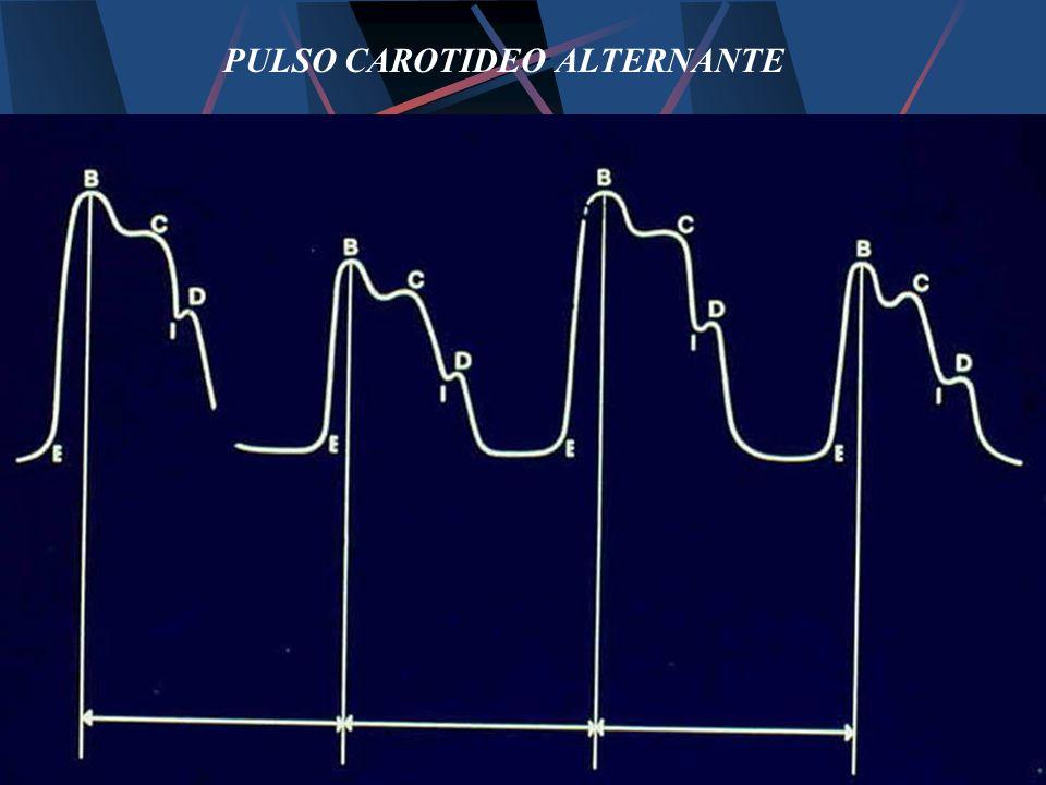 PULSO CAROTIDEO ALTERNANTE