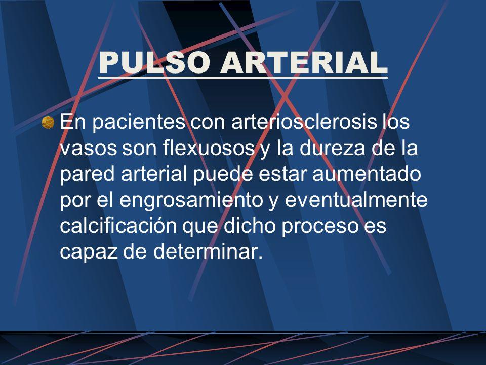 PULSO ARTERIAL En pacientes con arteriosclerosis los vasos son flexuosos y la dureza de la pared arterial puede estar aumentado por el engrosamiento y