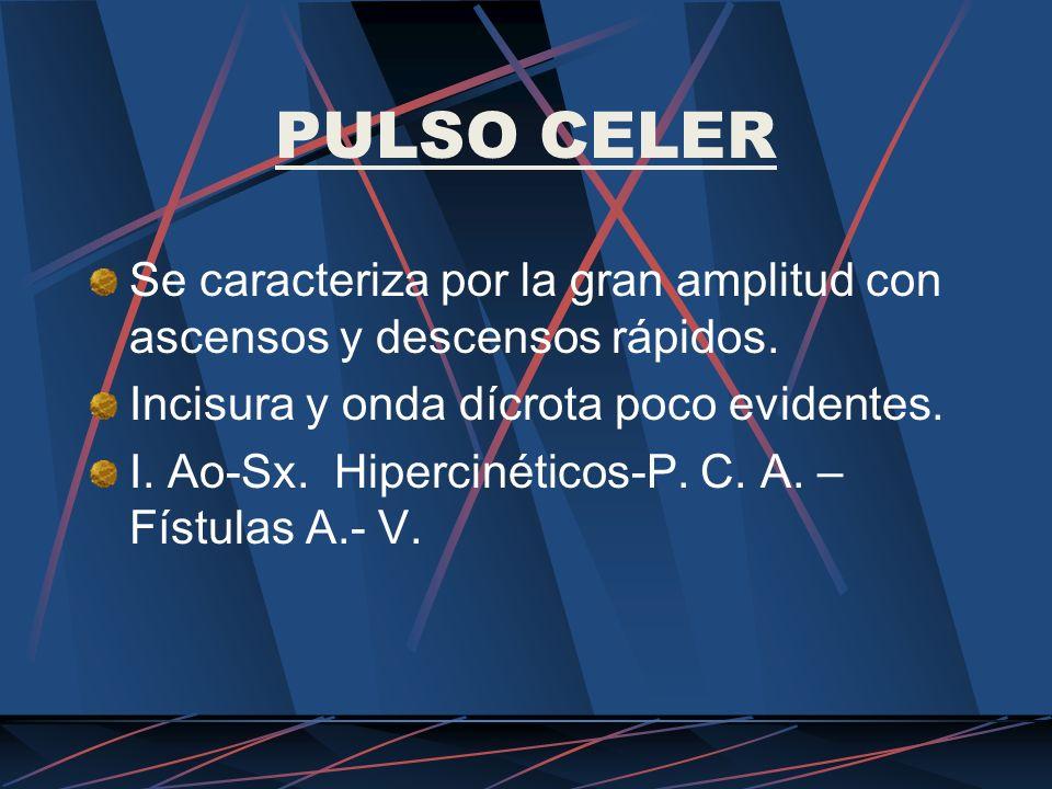 PULSO CELER Se caracteriza por la gran amplitud con ascensos y descensos rápidos. Incisura y onda dícrota poco evidentes. I. Ao-Sx. Hipercinéticos-P.