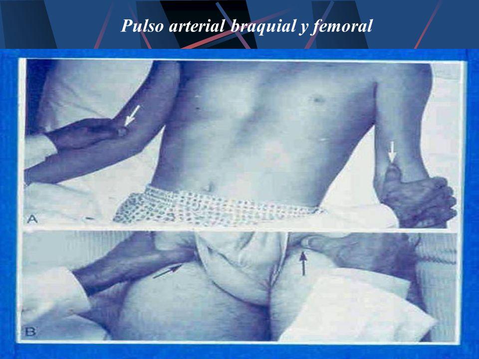 Pulso arterial braquial y femoral