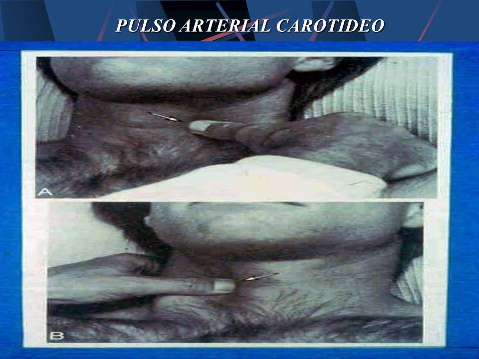 PULSO ARTERIAL CAROTIDEO
