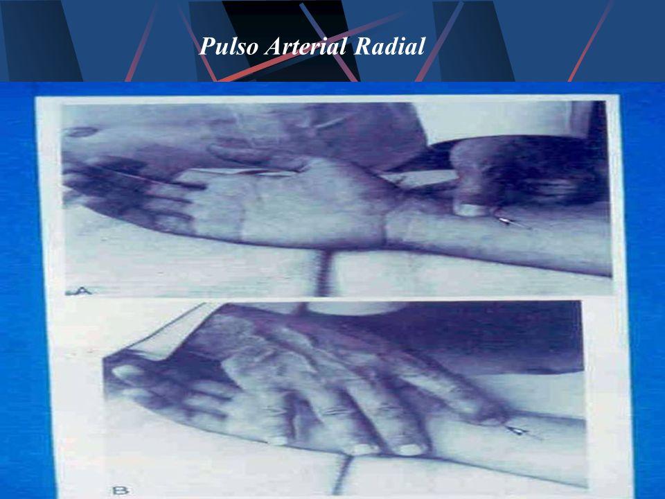 Pulso Arterial Radial
