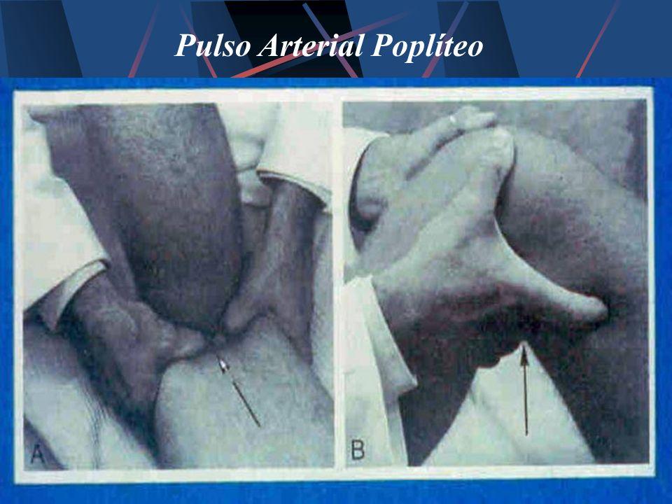 Pulso Arterial Poplíteo
