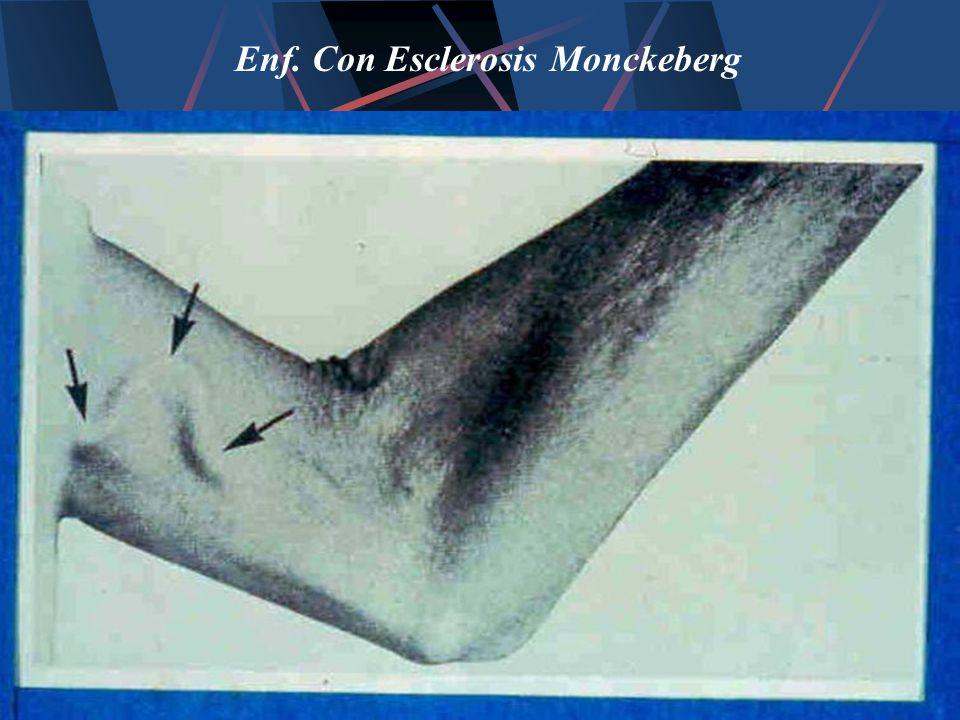 Enf. Con Esclerosis Monckeberg
