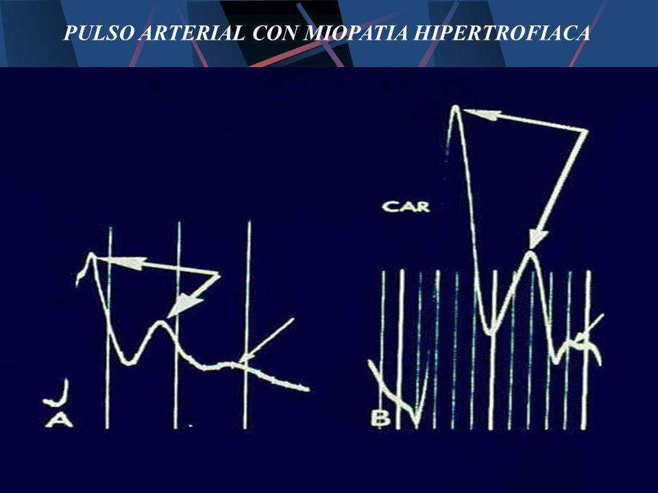 PULSO ARTERIAL CON MIOPATIA HIPERTROFIACA
