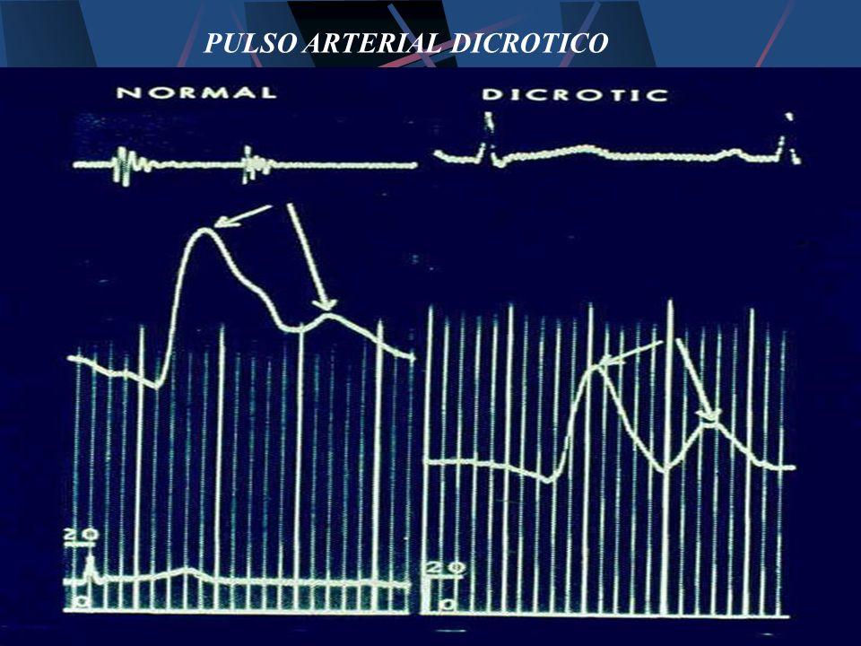 PULSO ARTERIAL DICROTICO