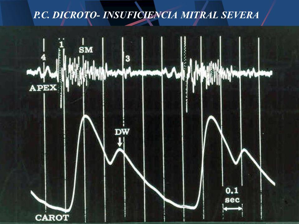 P.C. DICROTO- INSUFICIENCIA MITRAL SEVERA