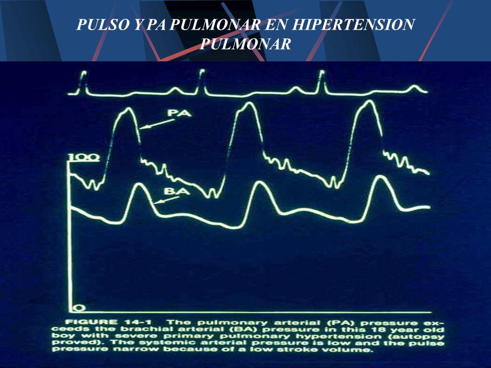 PULSO Y PA PULMONAR EN HIPERTENSION PULMONAR