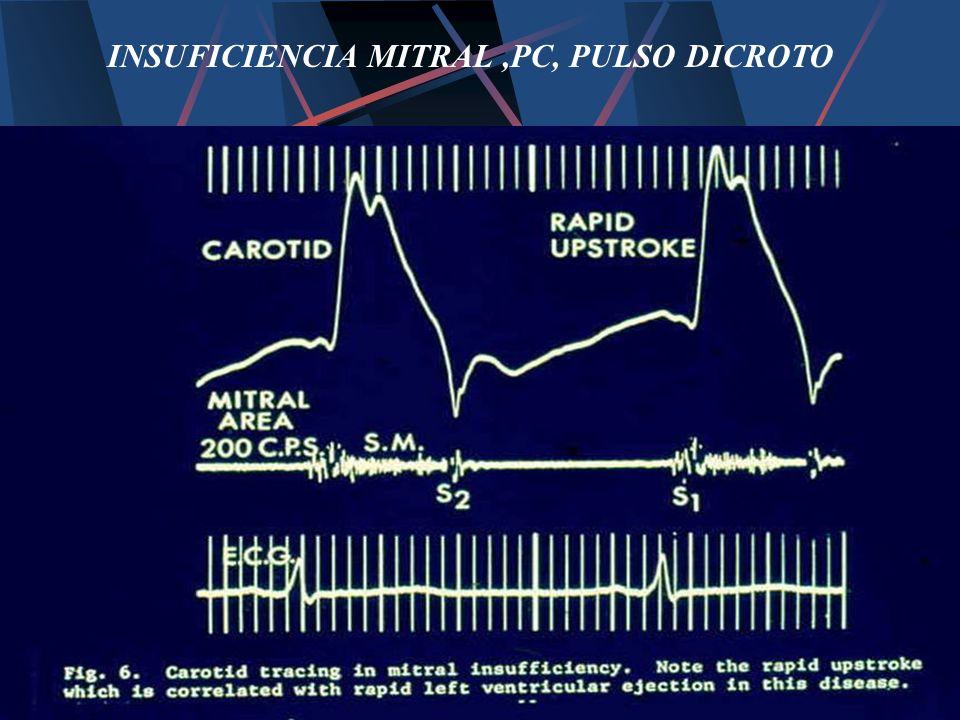 INSUFICIENCIA MITRAL,PC, PULSO DICROTO