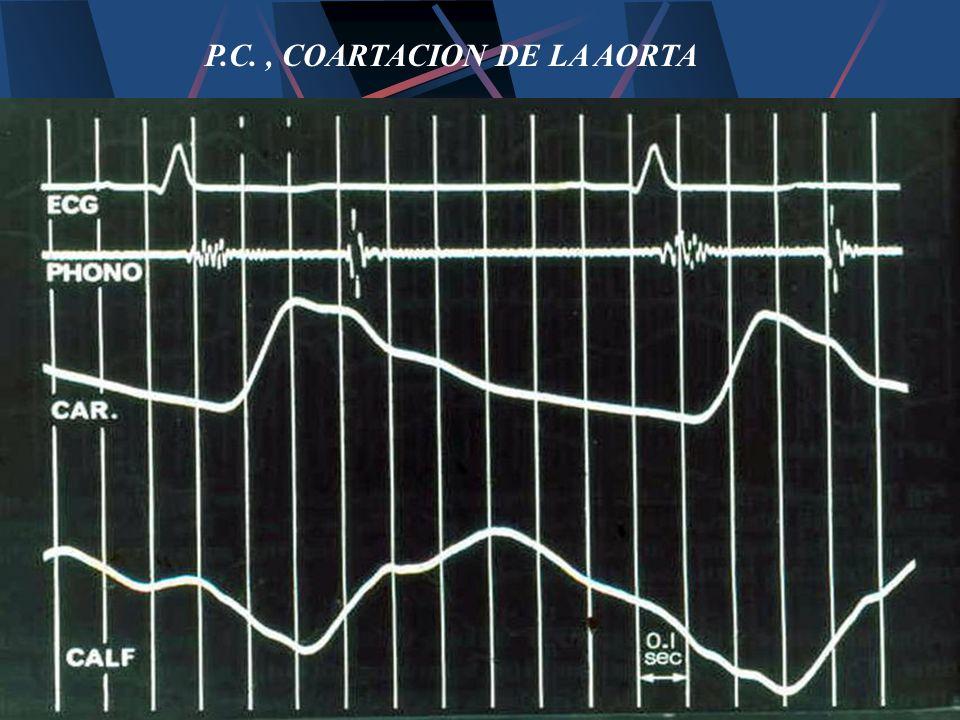P.C., COARTACION DE LA AORTA