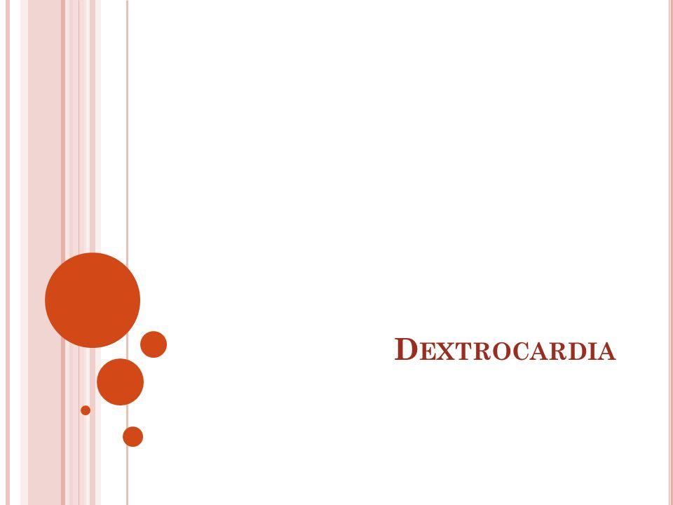 D EXTROCARDIA