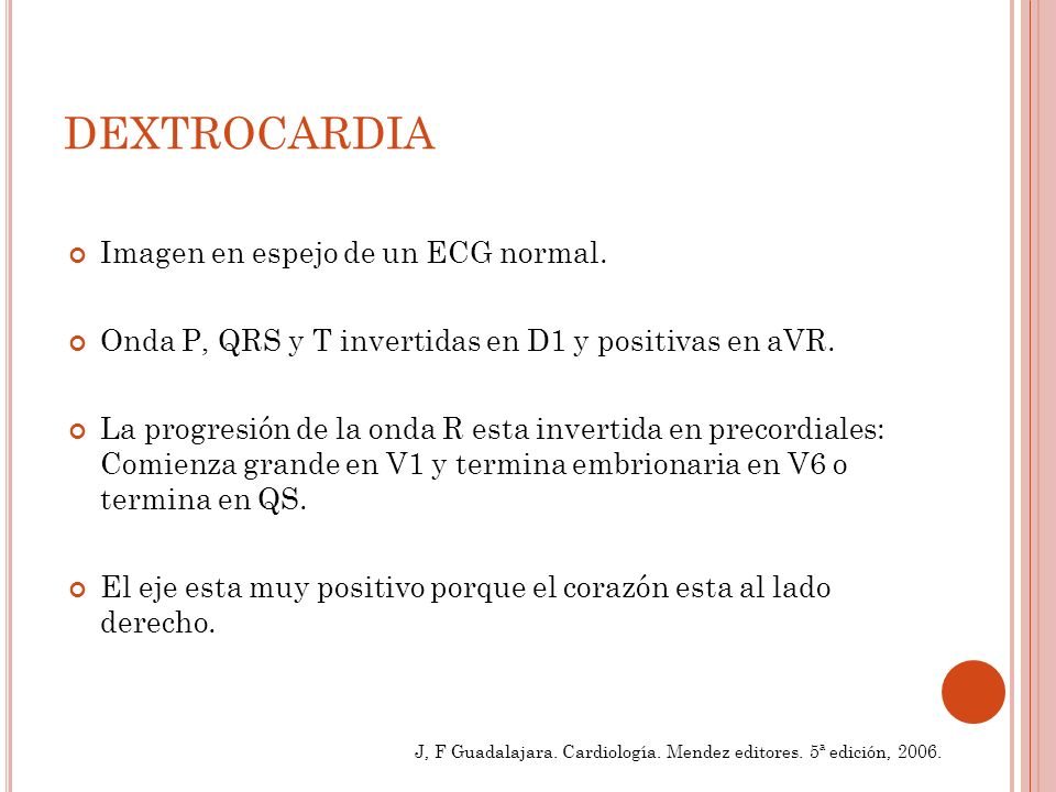 Imagen en espejo de un ECG normal.Onda P, QRS y T invertidas en D1 y positivas en aVR.