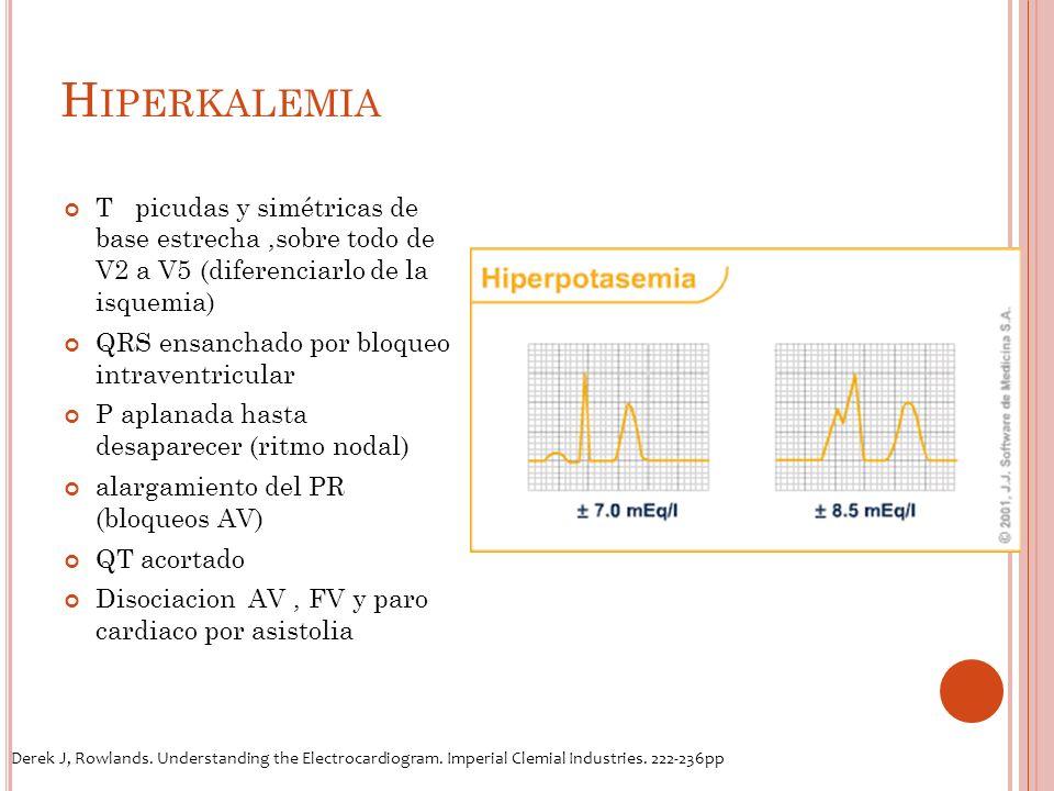 H IPERKALEMIA T picudas y simétricas de base estrecha,sobre todo de V2 a V5 (diferenciarlo de la isquemia) QRS ensanchado por bloqueo intraventricular P aplanada hasta desaparecer (ritmo nodal) alargamiento del PR (bloqueos AV) QT acortado Disociacion AV, FV y paro cardiaco por asistolia Derek J, Rowlands.