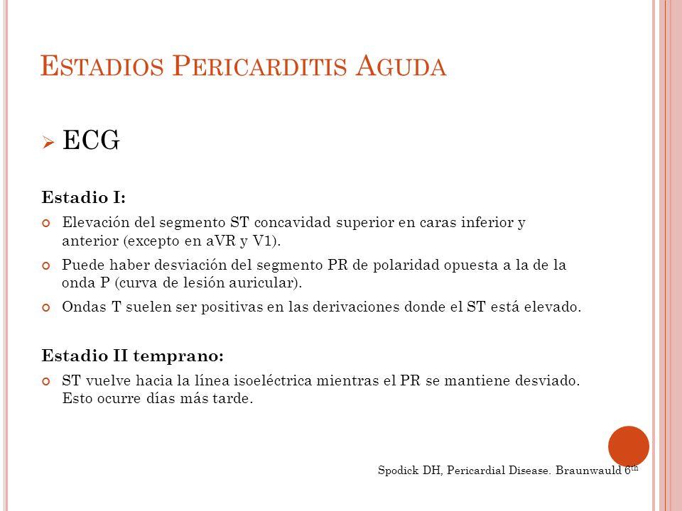 E STADIOS P ERICARDITIS A GUDA ECG Estadio I: Elevación del segmento ST concavidad superior en caras inferior y anterior (excepto en aVR y V1).