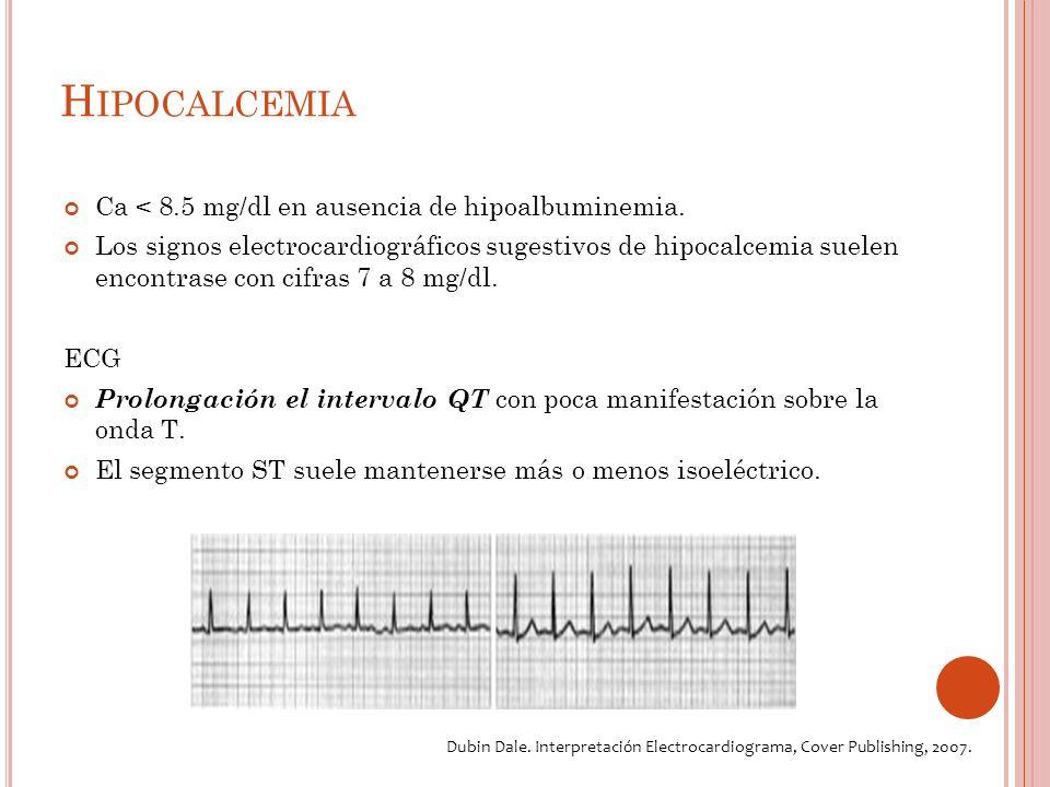 H IPOCALCEMIA Ca < 8.5 mg/dl en ausencia de hipoalbuminemia.