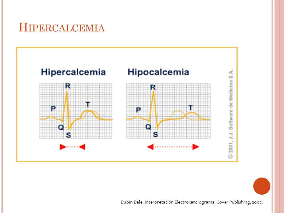 H IPERCALCEMIA ECG A cortamiento del intervalo QT.