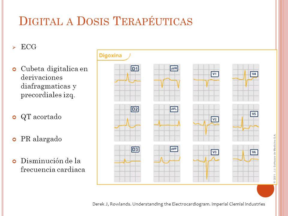 D IGITAL A D OSIS T ERAPÉUTICAS ECG Cubeta digitalica en derivaciones diafragmaticas y precordiales izq.