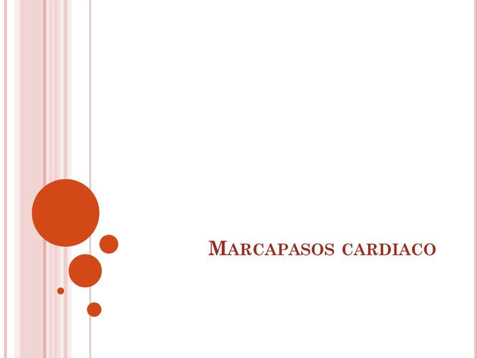 M ARCAPASOS CARDIACO