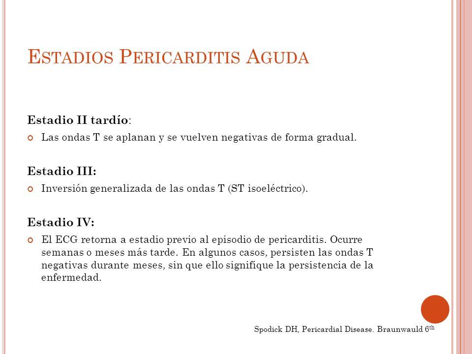 E STADIOS P ERICARDITIS A GUDA Estadio II tardío : Las ondas T se aplanan y se vuelven negativas de forma gradual.
