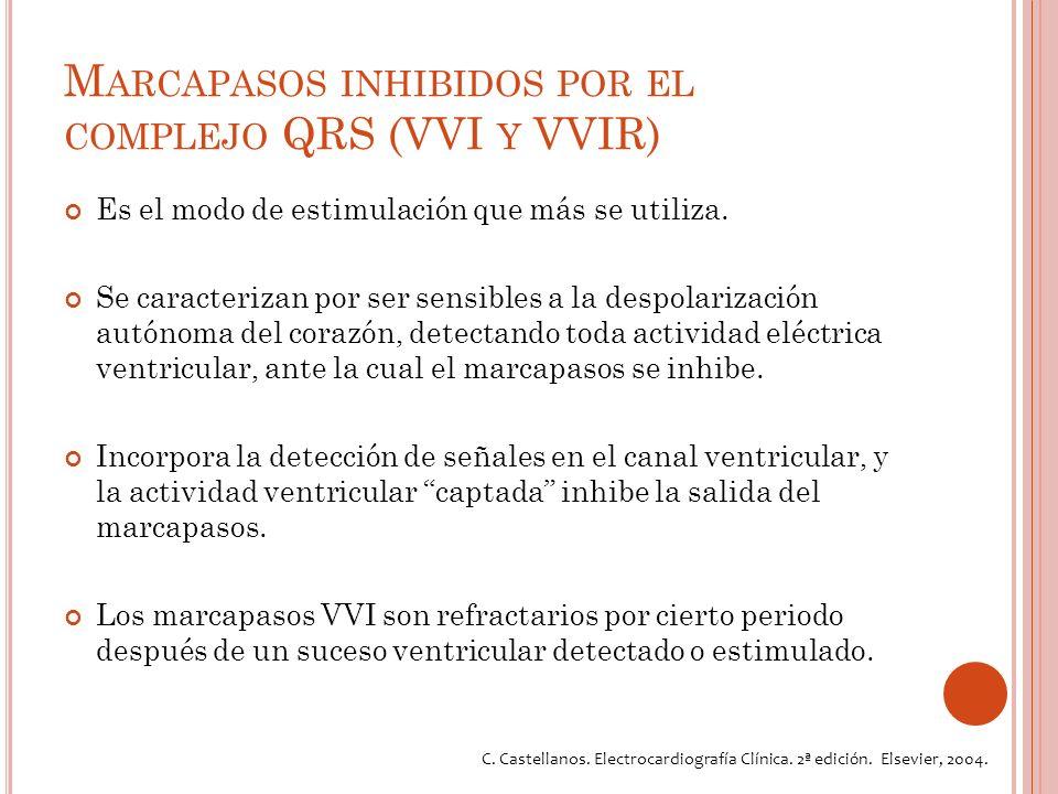 M ARCAPASOS INHIBIDOS POR EL COMPLEJO QRS (VVI Y VVIR) Es el modo de estimulación que más se utiliza.