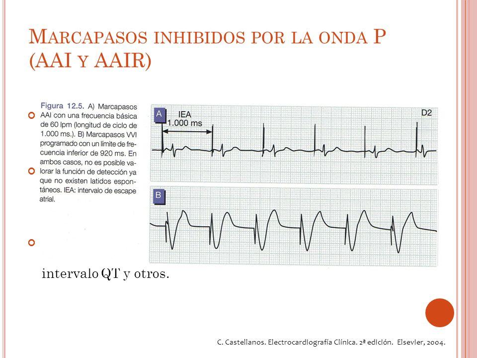 M ARCAPASOS INHIBIDOS POR LA ONDA P (AAI Y AAIR) Es el equivalente atrial de la estimulación por modalidad VVI y VVIR.
