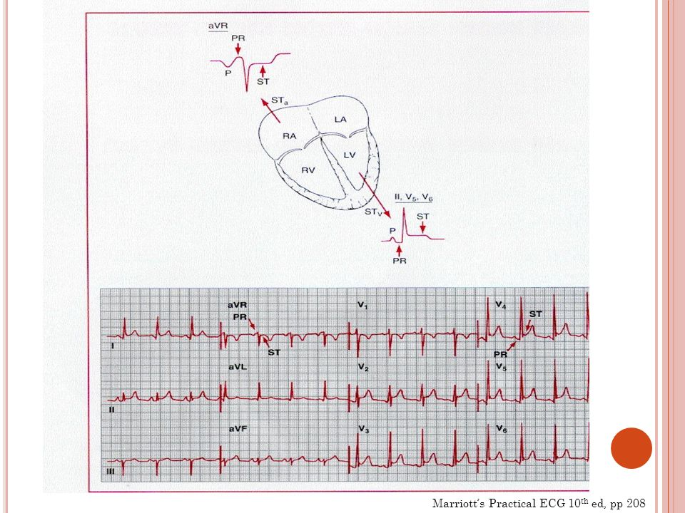 Marriotts Practical ECG 10 th ed, pp 208