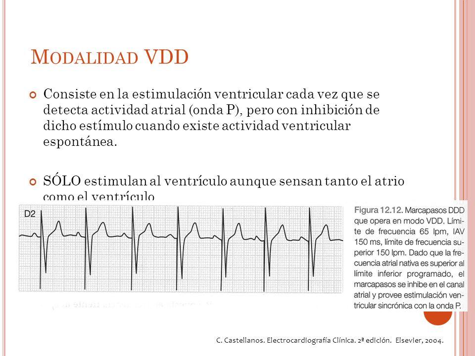 M ODALIDAD VDD Consiste en la estimulación ventricular cada vez que se detecta actividad atrial (onda P), pero con inhibición de dicho estímulo cuando existe actividad ventricular espontánea.
