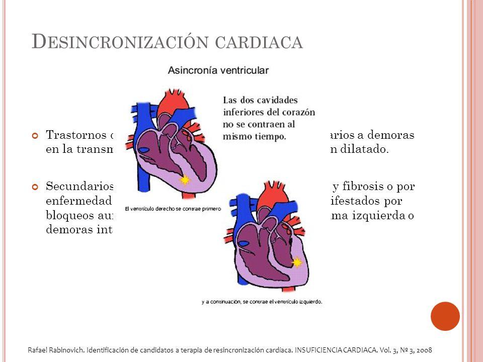 D ESINCRONIZACIÓN CARDIACA Trastornos de conducción intraventricular, secundarios a demoras en la transmisión del impulso cardíaco en el corazón dilatado.