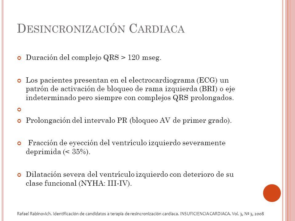 D ESINCRONIZACIÓN C ARDIACA Duración del complejo QRS > 120 mseg.