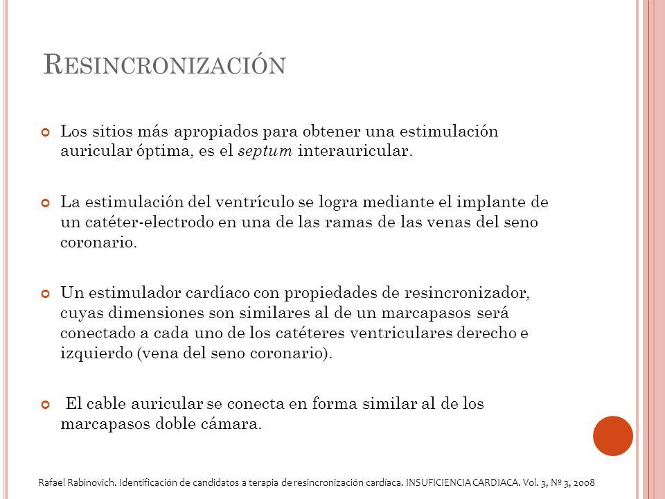 R ESINCRONIZACIÓN Los sitios más apropiados para obtener una estimulación auricular óptima, es el septum interauricular.