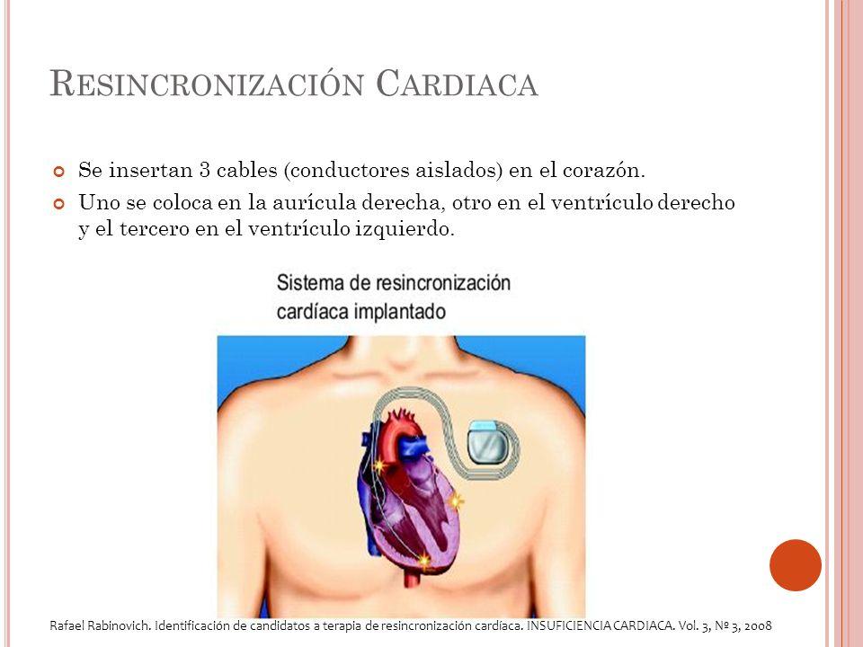 R ESINCRONIZACIÓN C ARDIACA Se insertan 3 cables (conductores aislados) en el corazón.